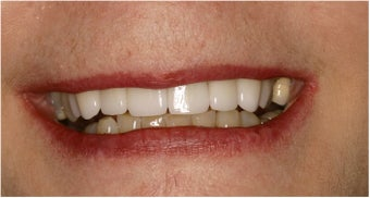 Dental Implant after 135548
