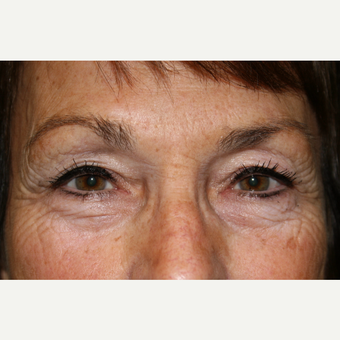 65-74 year old woman treated with Eyelid Surgery before 3142073