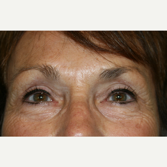 65-74 year old woman treated with Eyelid Surgery after 3142073