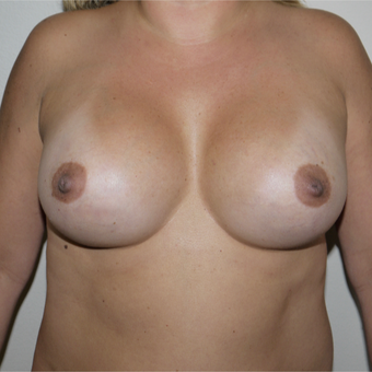 35-44 year old woman treated with Breast Augmentation after 3077629