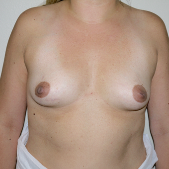 35-44 year old woman treated with Breast Augmentation before 3077629