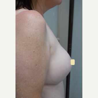 45-54 year old woman treated with Breast Lift after 2994575