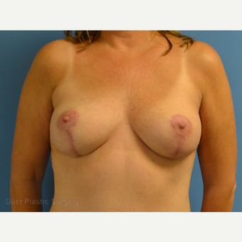 35-44 year old woman treated with Breast Lift after 3349948