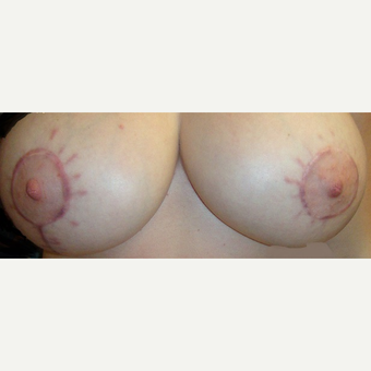 25-34 year old woman treated with Breast Implant Revision before 3424218