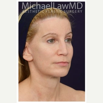 45-54 year old woman treated with Forehead Lift