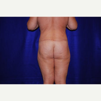 45-54 year old woman treated with Body Lift 1690911