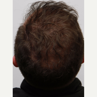 35-44 year old man treated with Organic Hair Transplant after 3172523