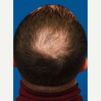35-44 year old man treated with Organic Hair Transplant before 3172523