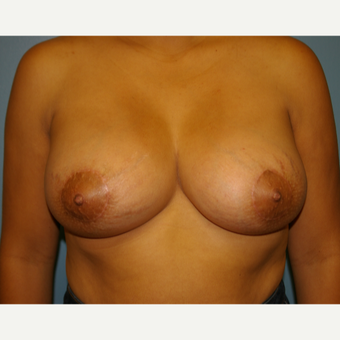 18-24 year old woman treated with Breast Lift with Implants after 2854777