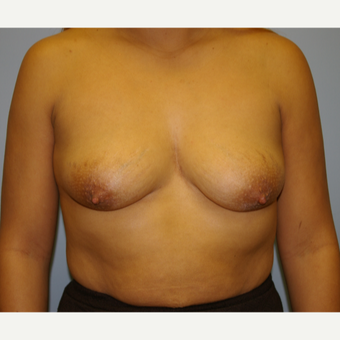 18-24 year old woman treated with Breast Lift with Implants before 2854777