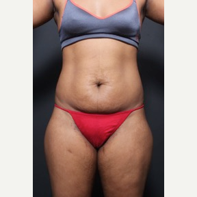 25-34 year old woman treated with Tummy Tuck before 2818974