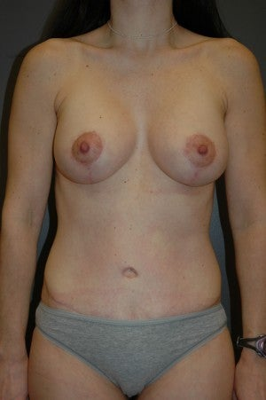 Full abdominoplasty in conjuction with breast augmentation/lift.