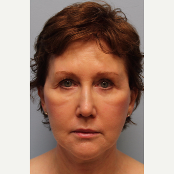 55-64 year old woman treated with Facelift, Laser resurfacing after 3615772