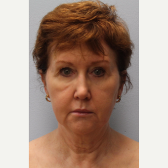 55-64 year old woman treated with Facelift, Laser resurfacing before 3615772