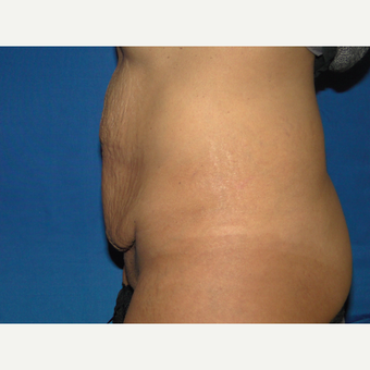 32 year old  treated with Tummy Tuck before 3776172