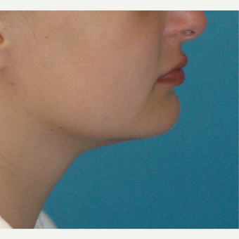 34 year old woman treated with Liposuction of the neck after 3226020