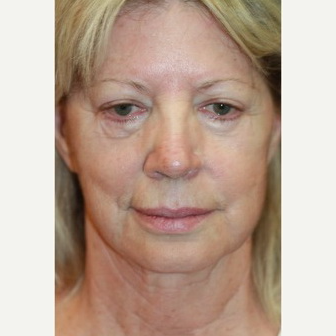 62 year old woman treated with Facelift Revision before 3629375