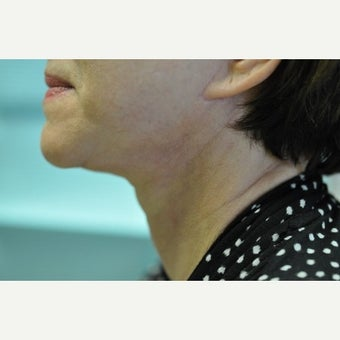 65-74 year old woman treated with Face-neck Lift after 2461950