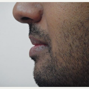 25-34 year old man treated with Lip Reduction