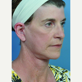 55-64 year old woman treated with Neck Lift after 3697081