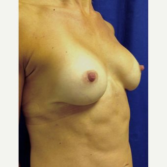 35-44 year old woman treated with Breast Augmentation after 3360955