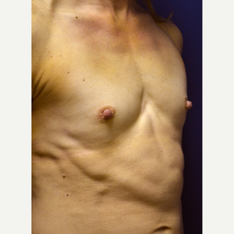 35-44 year old woman treated with Breast Augmentation before 3360955