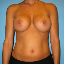 Breast Augmentation after 3665677