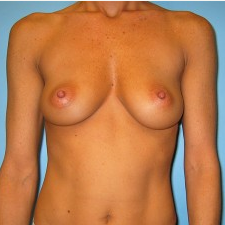 Breast Augmentation before 3665677