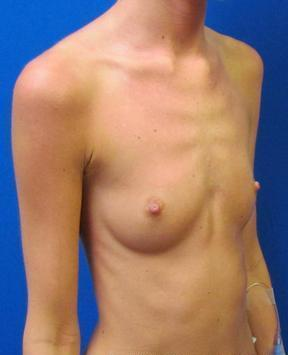 Breast Augmentation before 968184