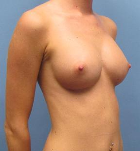 Breast Augmentation after 968184