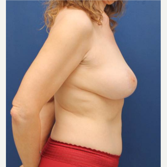 48 year old female who had a breast lift after weight loss for saggy breasts after 2998900