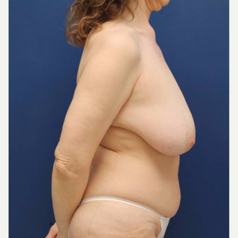 48 year old female who had a breast lift after weight loss for saggy breasts before 2998900