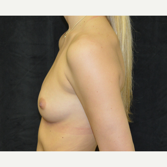 18-24 year old woman treated with Breast Augmentation before 3419258
