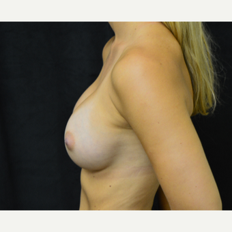 18-24 year old woman treated with Breast Augmentation after 3419258
