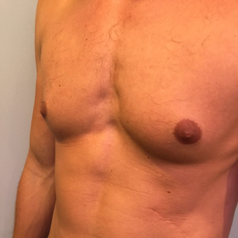 25-34 year old man treated with Male Breast Reduction before 3782510