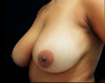 28 year old woman treated with Breast Lift before 3817510