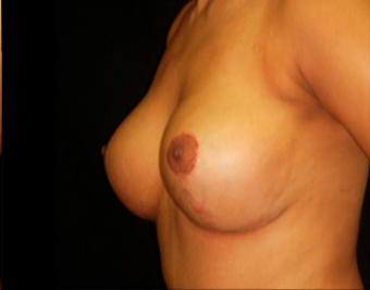 28 year old woman treated with Breast Lift after 3817510