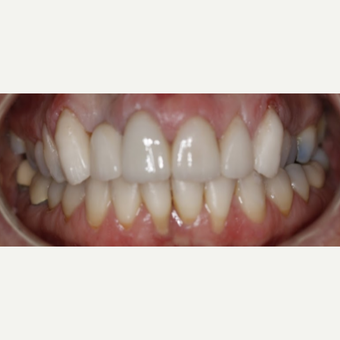 Replacement Dental Dental Crown after 3096726