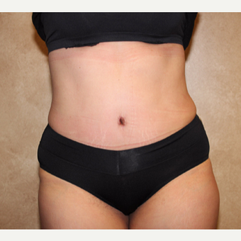Tummy tuck with liposuction after 3325362