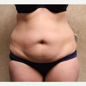 Tummy tuck with liposuction before 3325362