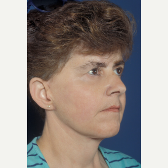 45-54 year old woman treated with Lower Face Lift after 1557688