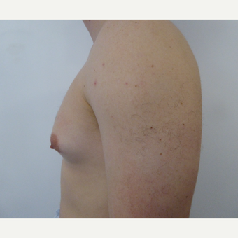 25-34 year old man treated with Male Breast Reduction before 3501883