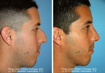 Rhinoplasty before 221413