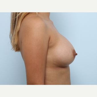 Breast Augmentation after 3345238