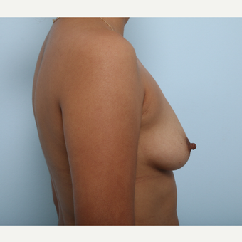 Breast Augmentation before 3345238