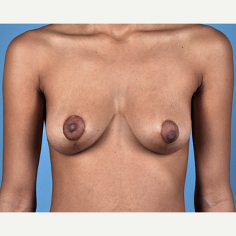 18-24 year old woman treated with Breast Lift after 3837682