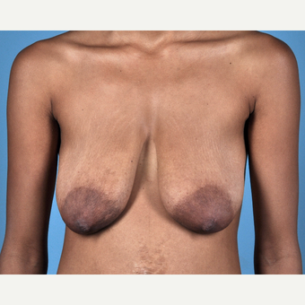 18-24 year old woman treated with Breast Lift before 3837682