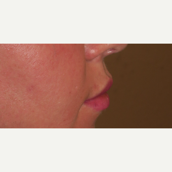 25-34 year old woman treated with Lip Lift before 2962335