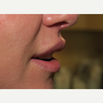 25-34 year old woman treated with Lip Lift after 2962335