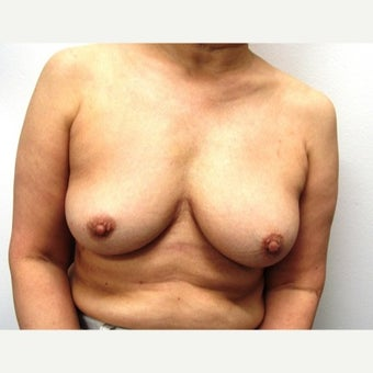 45-54 year old woman treated with Breast Implant Removal after 1540288